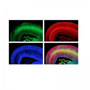 AFP Antibody Monoclonal (Mouse)