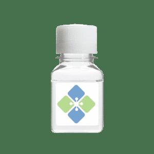 SARS-CoV-2 Nucleocapsid Protein